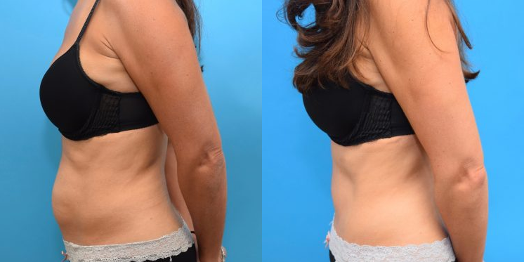 The Tummy Tuck Abdominoplasty Is One Of Best Cosmetic Procedures To Produce Noticeable Dramatic Results It Removes Sagging Abdominal Skin And