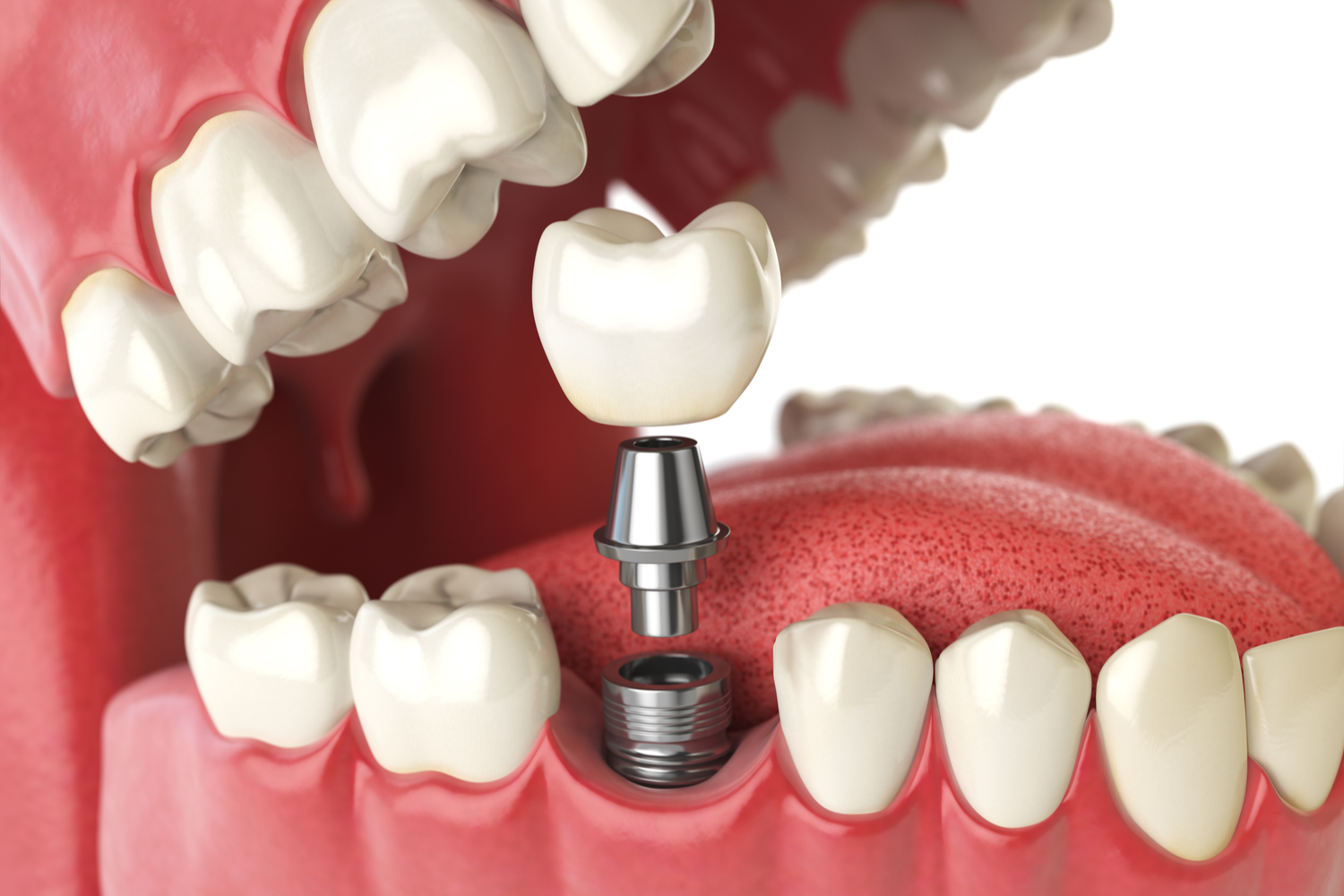 Dental Implant Surgery Recovery