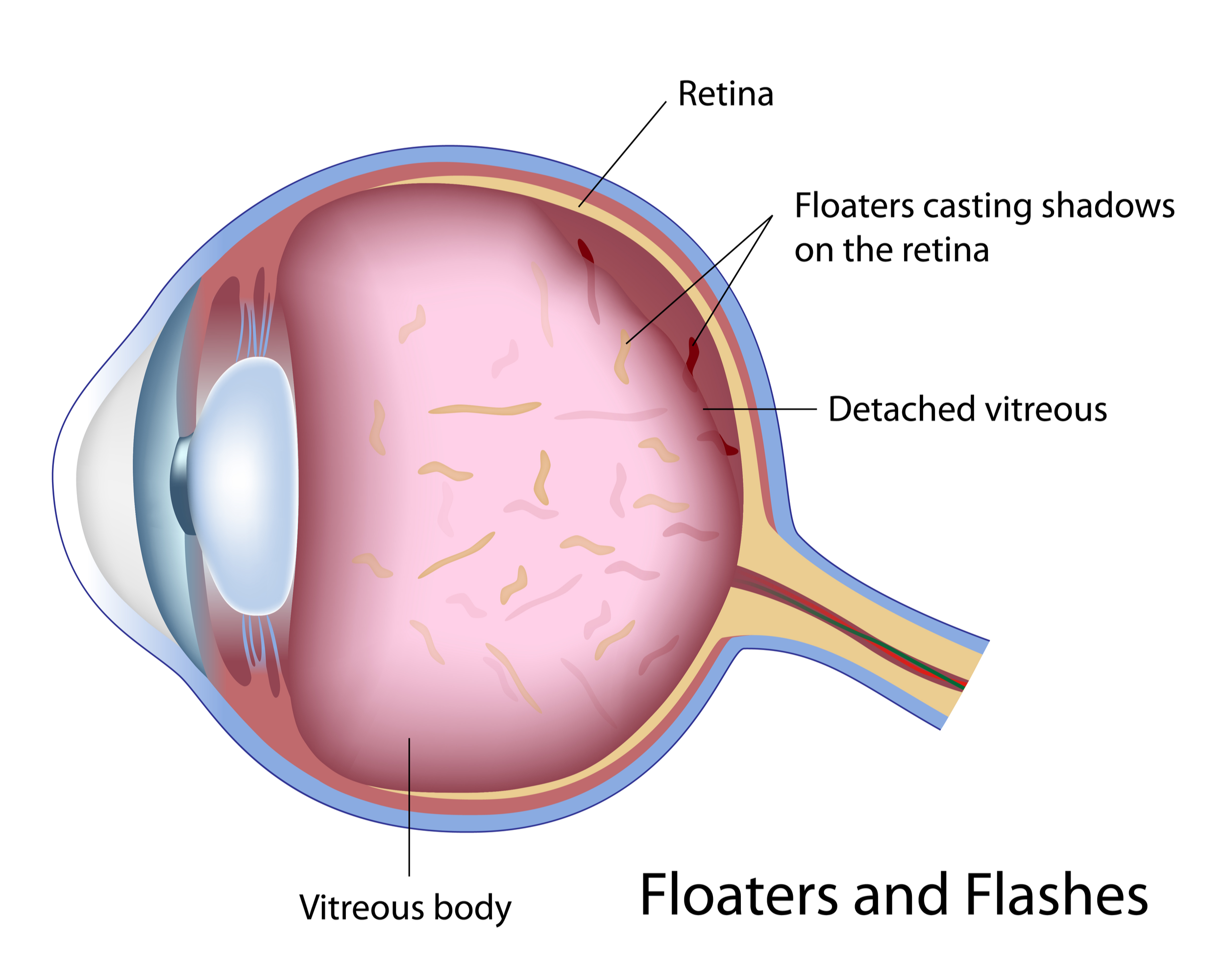 Treating Eye Floaters and Flashes