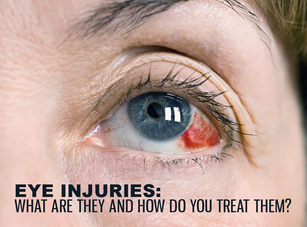 Eye Injuries: What Are They and How Do You Treat Them?