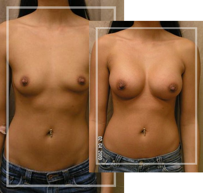 breast implants in metairie