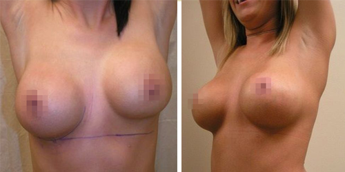 uneven breasts