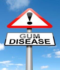 gum disease Clearwater FL