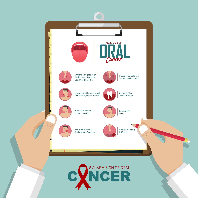 Should I Get Oral Cancer Screening?