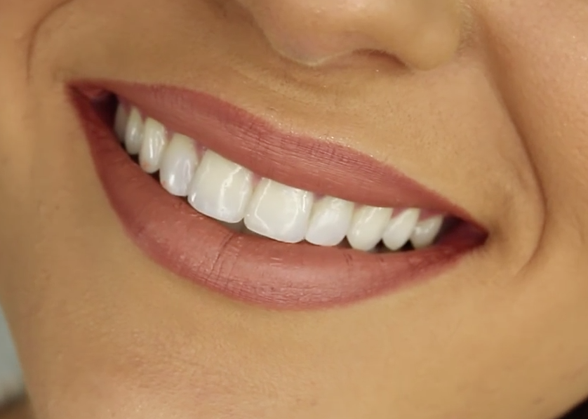 What Are The Best Methods Of Teeth Whitening