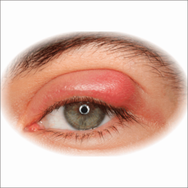 Common eye conditions blepharitis