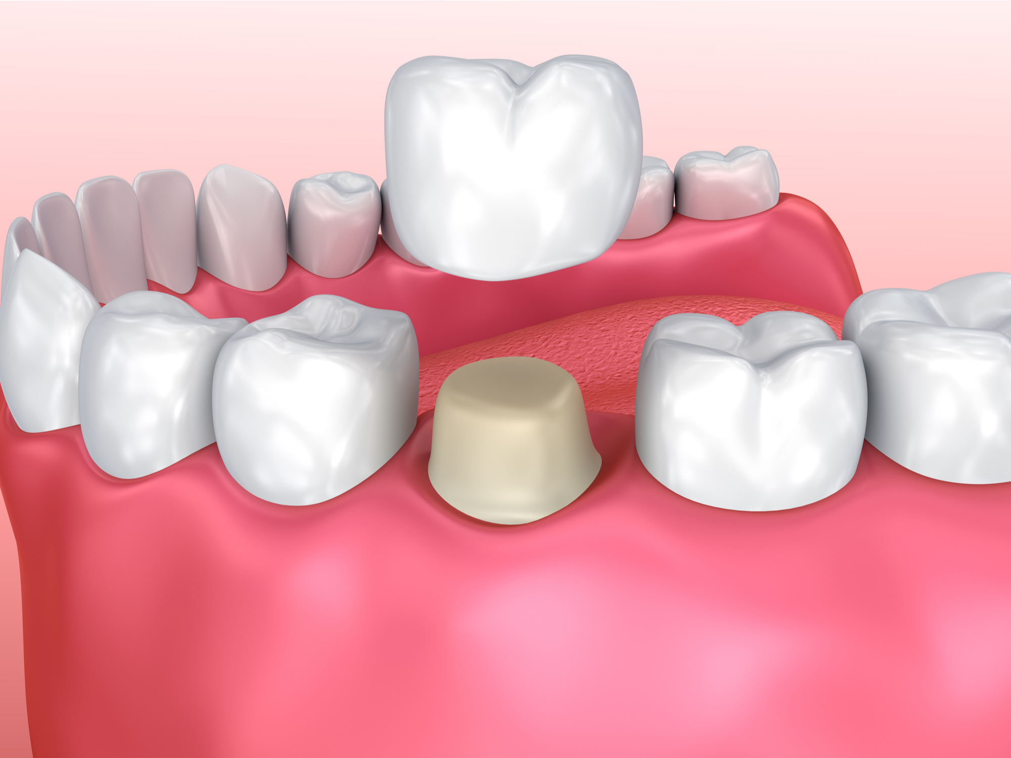 Fillings vs. Crowns: What's the Difference?