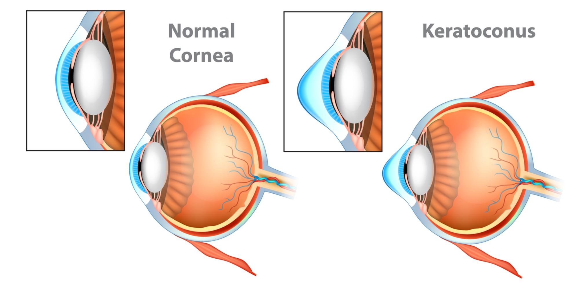 Signs and Treating Keratoconus