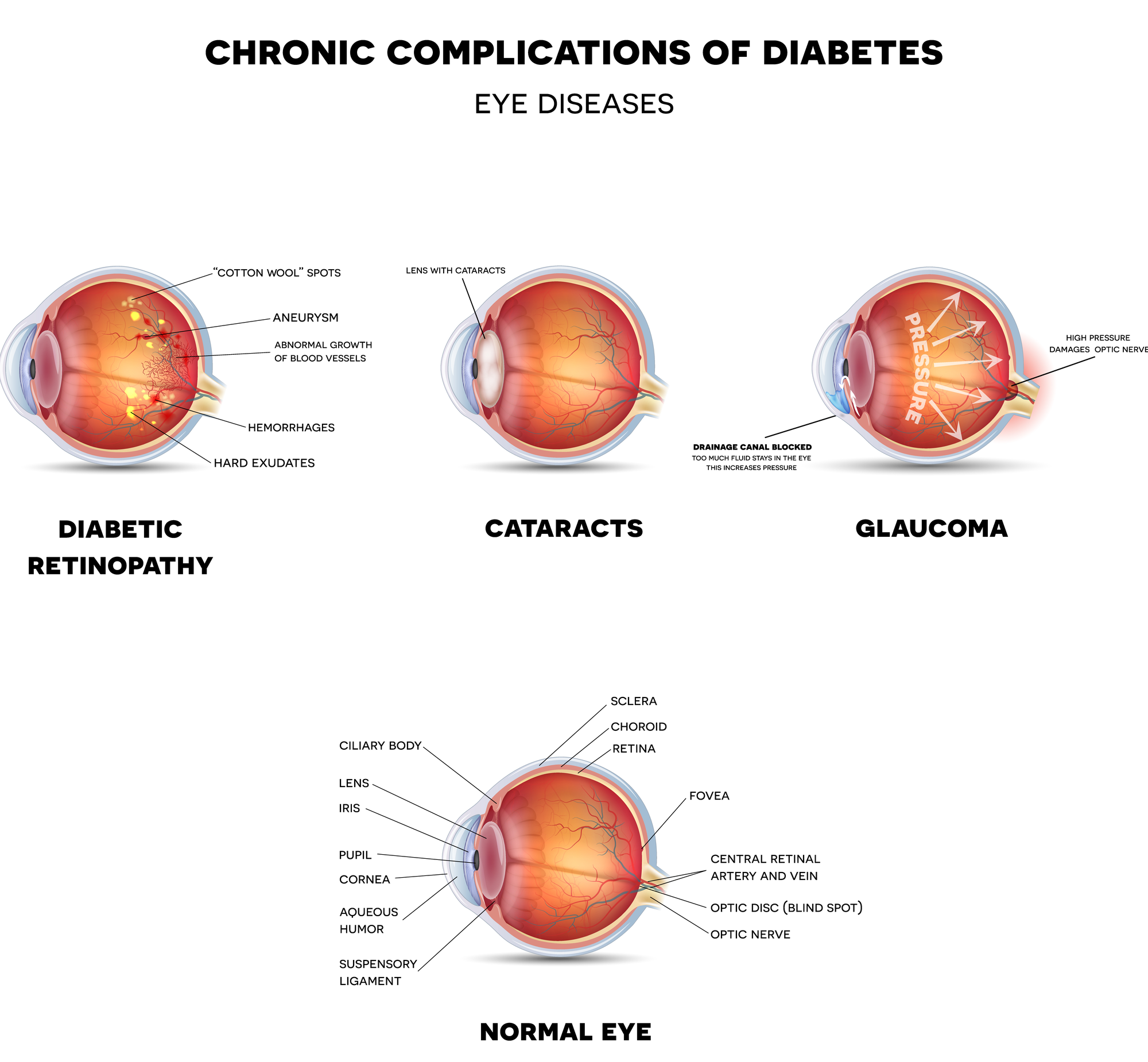 Diagnosing and Care for Diabetic Eye Diseases