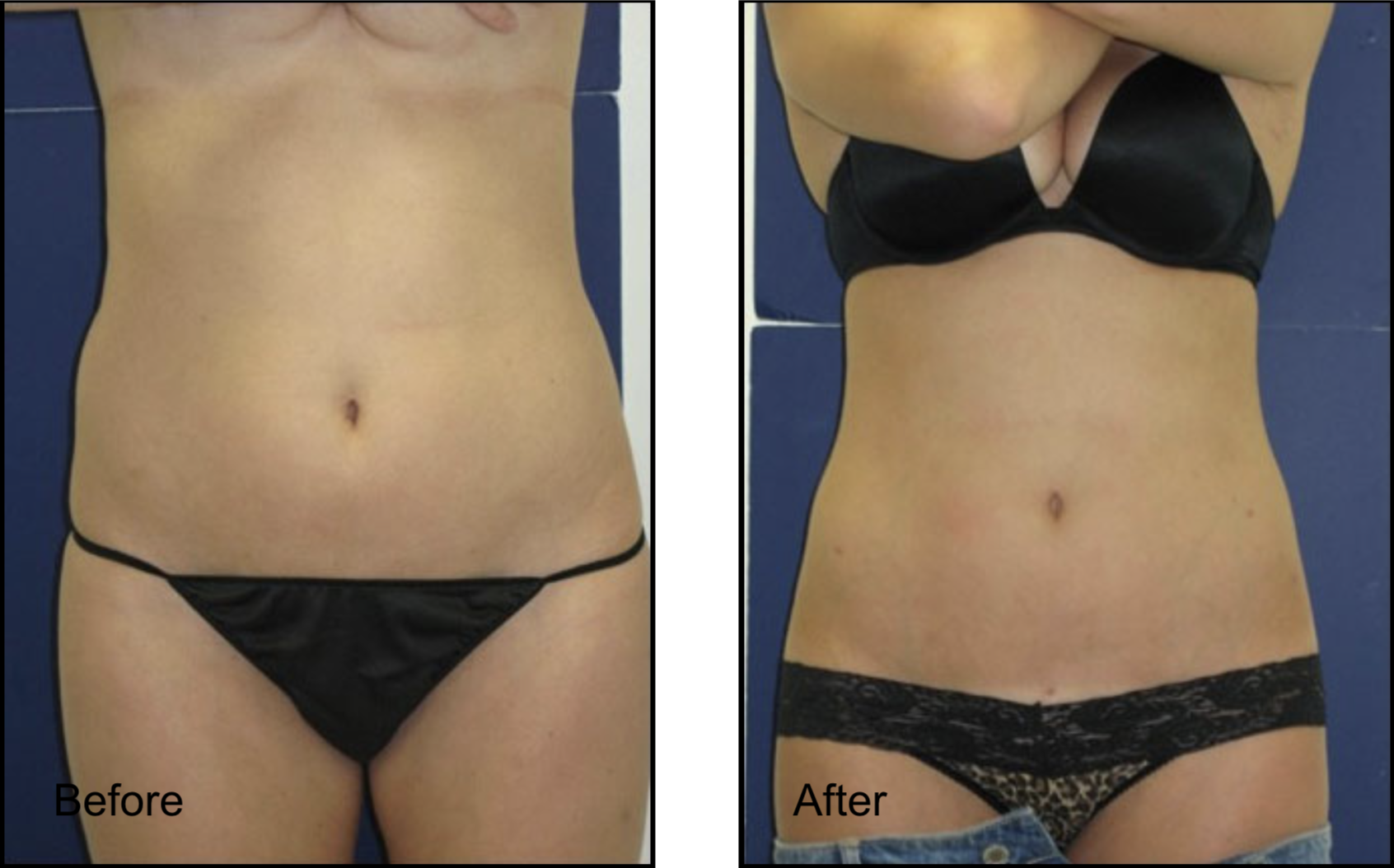 Abdominal Before & After