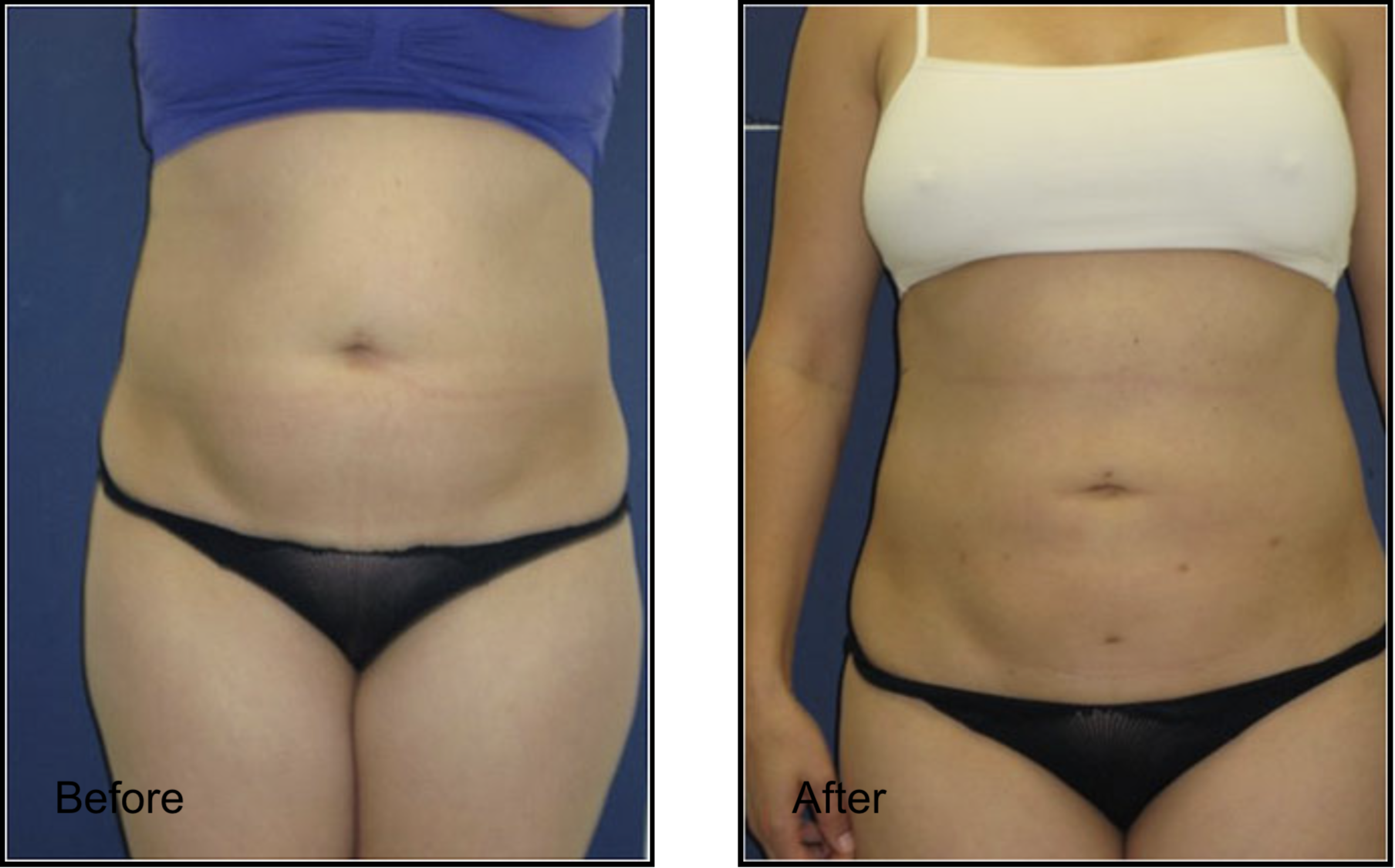 Love Handles Lipo Before & After