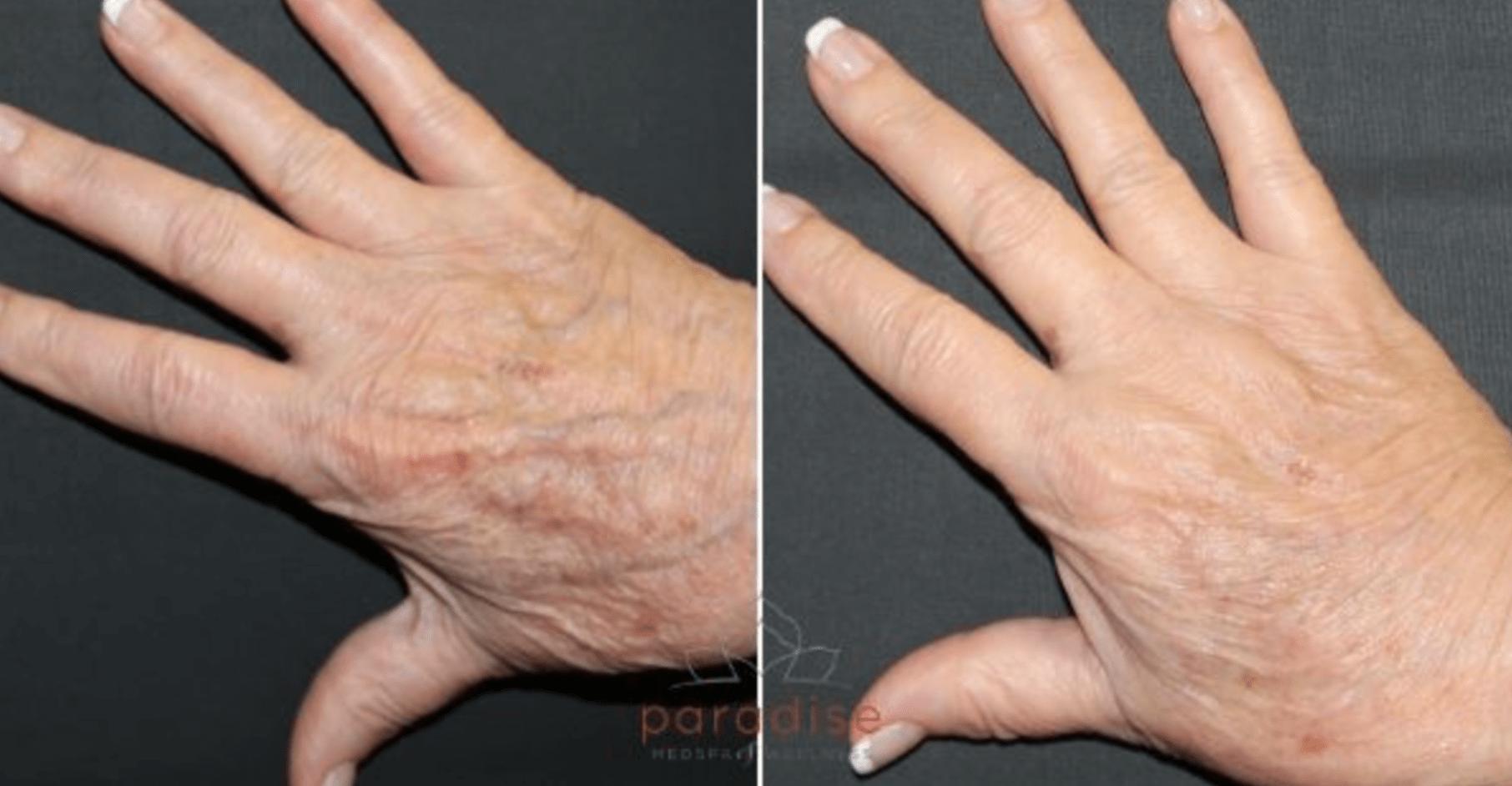 Hand Fat Grafting