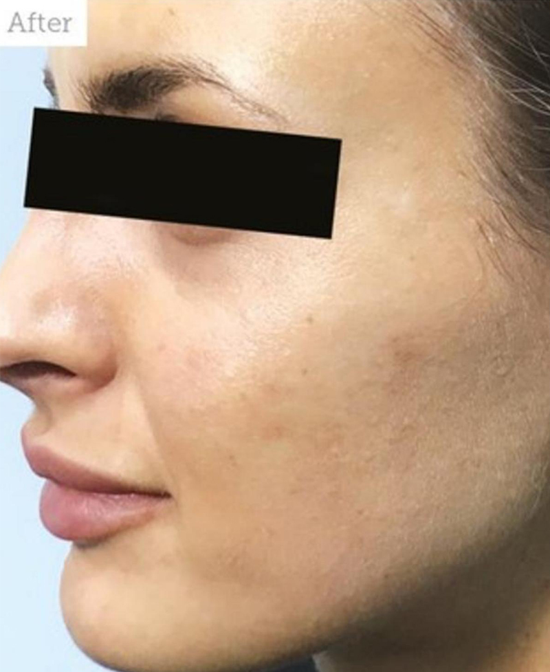 After Nonsurgical Cheeks Lift