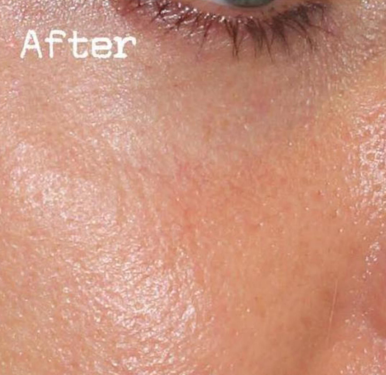 After Nonsurgical Under Eye Hollow