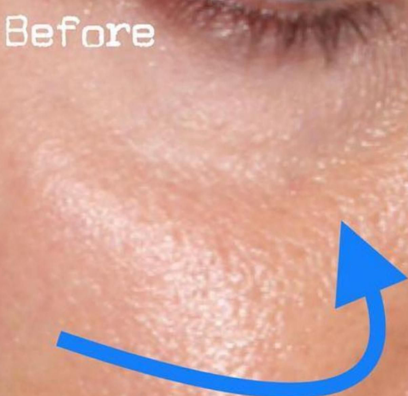Before Nonsurgical Under Eye Hollow