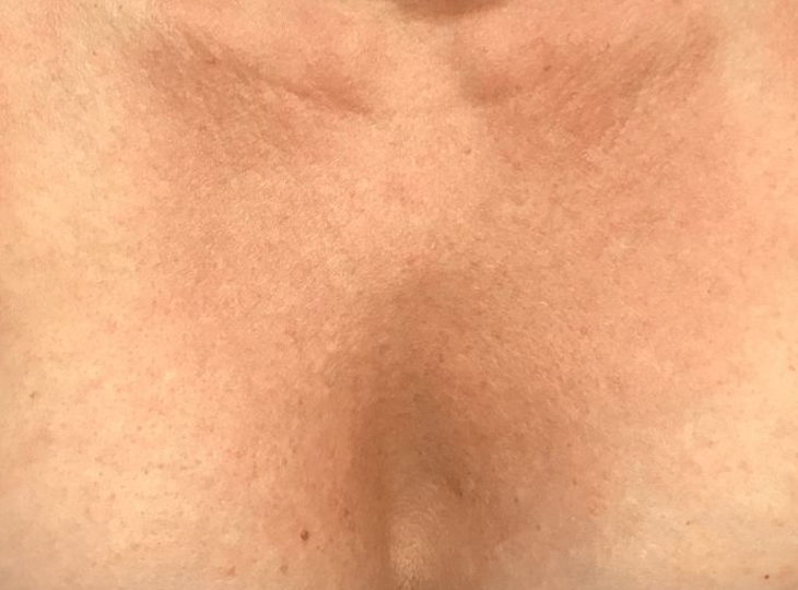 After Decolette - Cleavage Chest Wrinkles