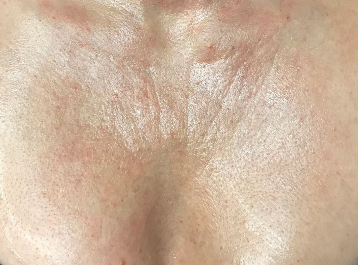 Before Decolette - Cleavage Chest Wrinkles