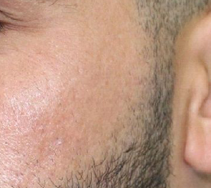 After Acne Scar Treatment