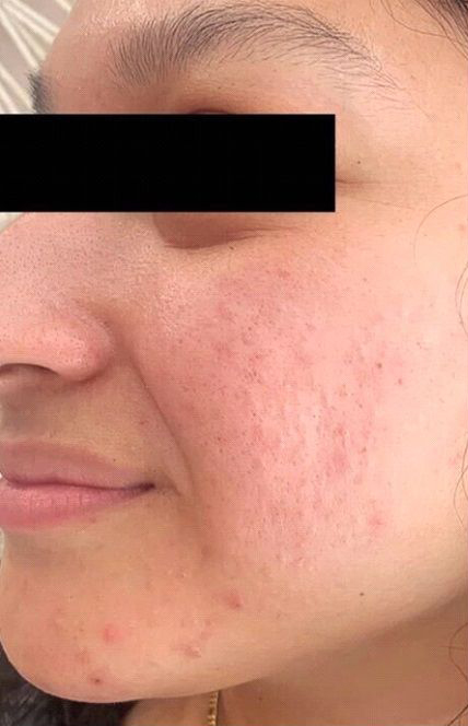 Before Acne Scar Treatment
