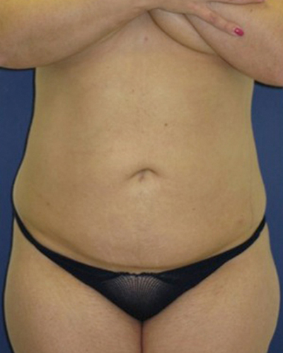After All Lipo Areas