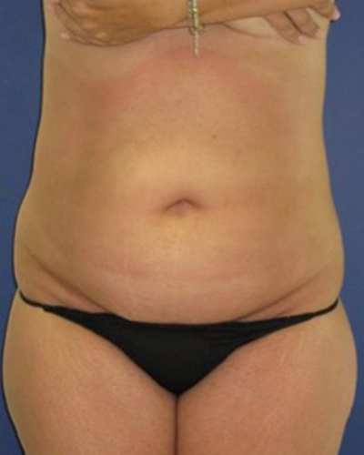 Before All Lipo Areas