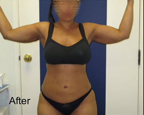 After Arms Lipo