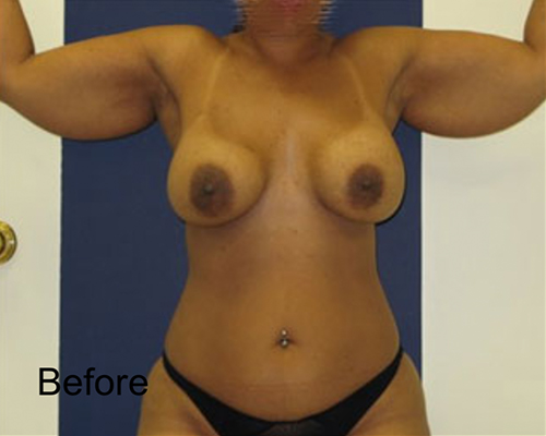 Before Arms Lipo