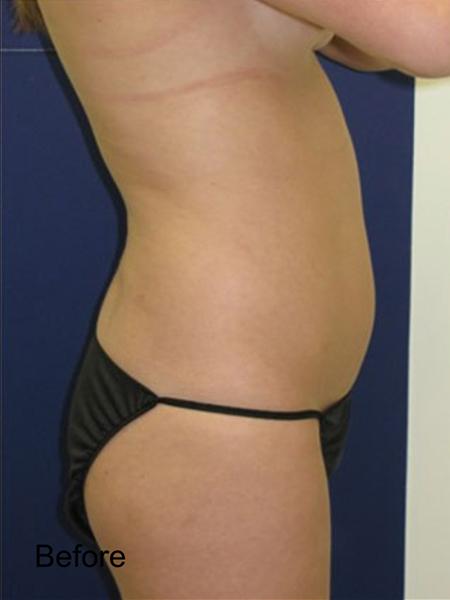 Before Tummy Lipo
