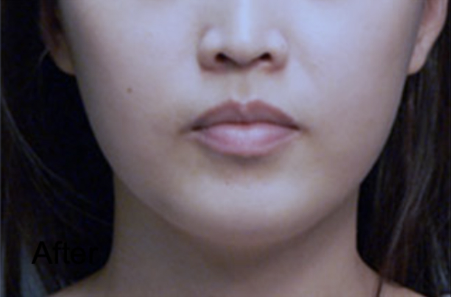 After Botox For Lower Face Slimming