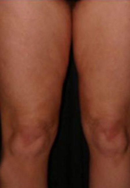 Before Cellulite