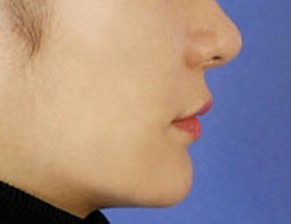 After Nonsurgical Chin Enhancement