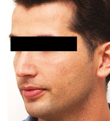 Before Nonsurgical Chin Enhancement
