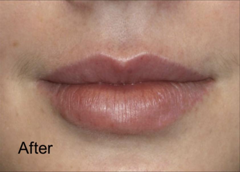 After Dermal Fillers