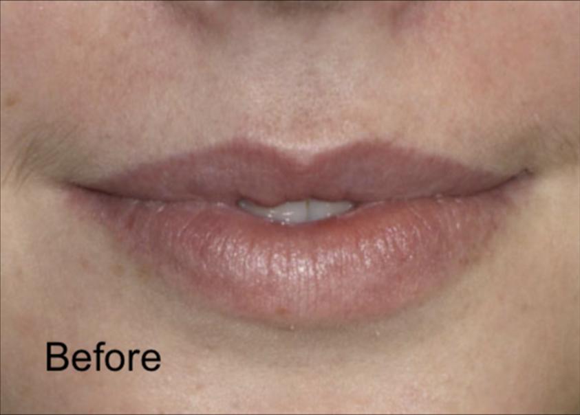 Before Dermal Fillers