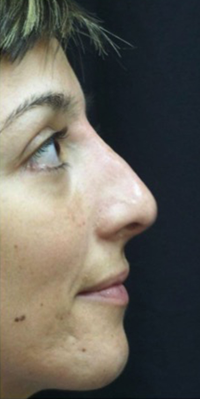 After Nonsurgical Rhinoplasty