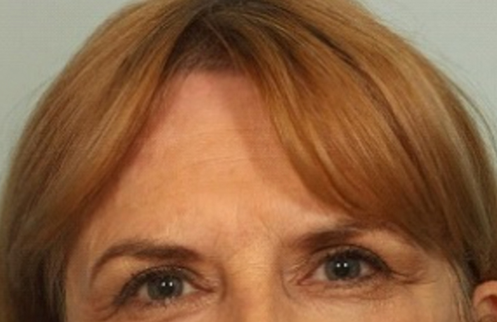 After Non-Surgical Fat Face Lift