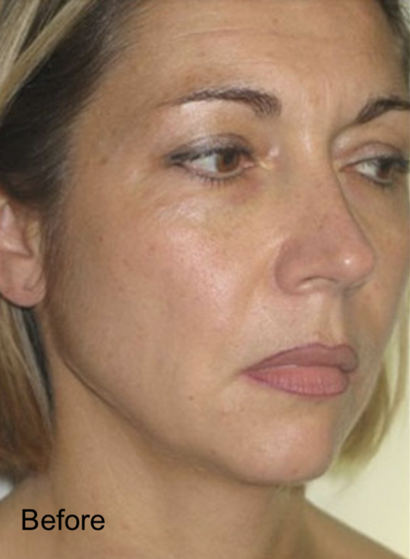 Before Non-Surgical Fat Face Lift