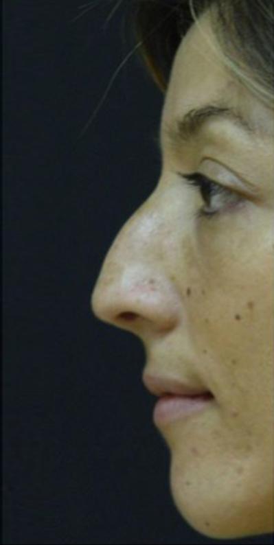 Before Nonsurgical Rhinoplasty