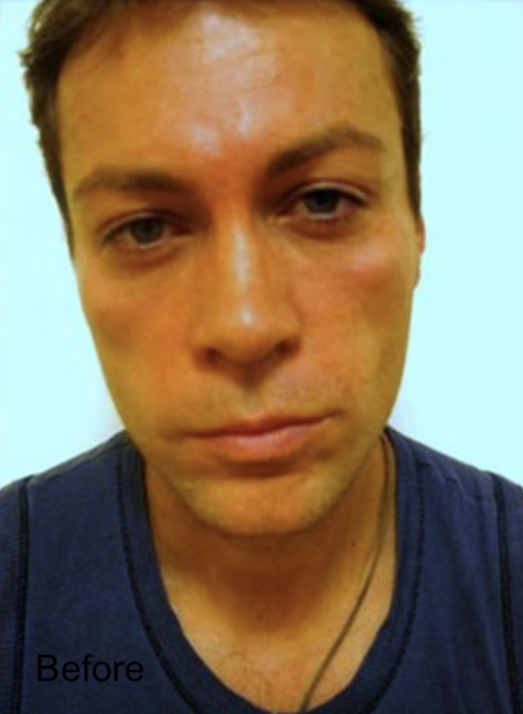 Before Nonsurgical Cheeks Lift