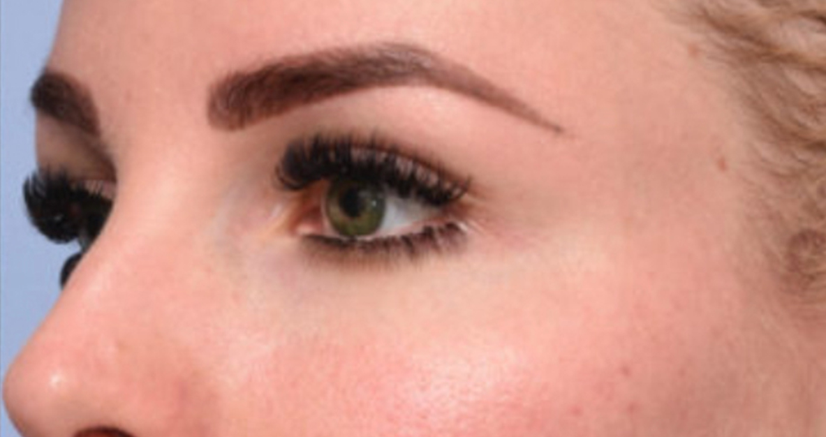 After Nonsurgical Browlift