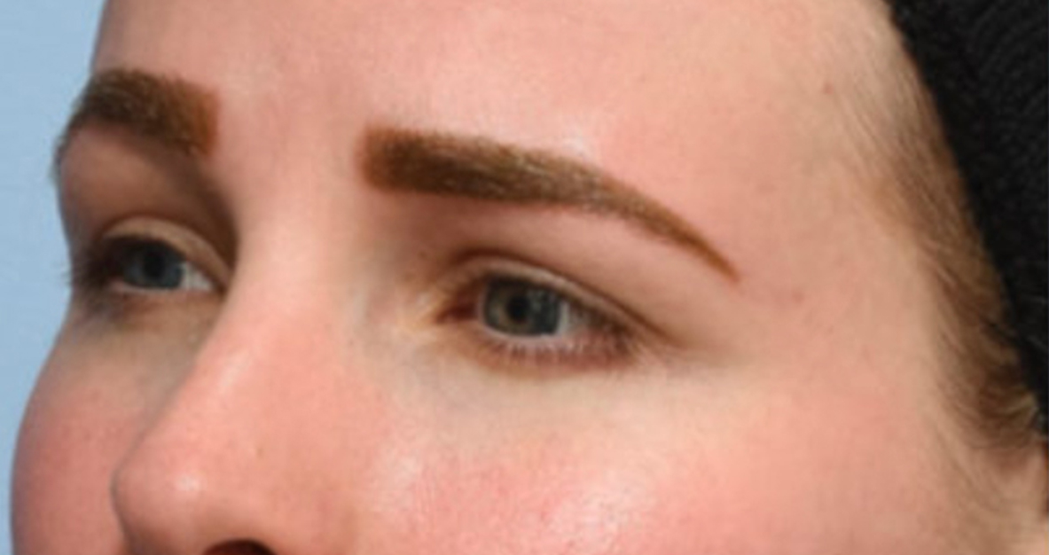 Before Nonsurgical Browlift