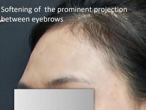 After Non-surgical Forehead Contouring