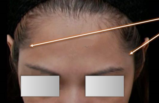 Before Non-surgical Forehead Contouring