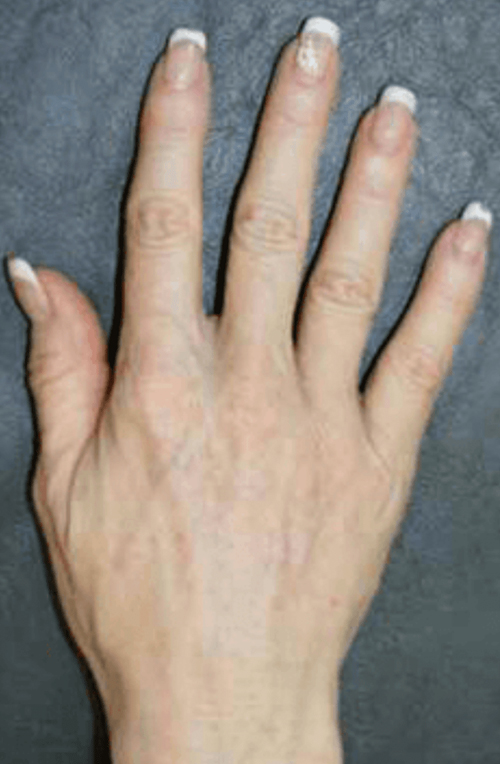 After Hands Fat Grafting