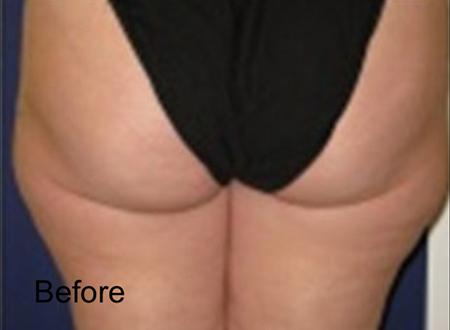 Before Hips Lipo