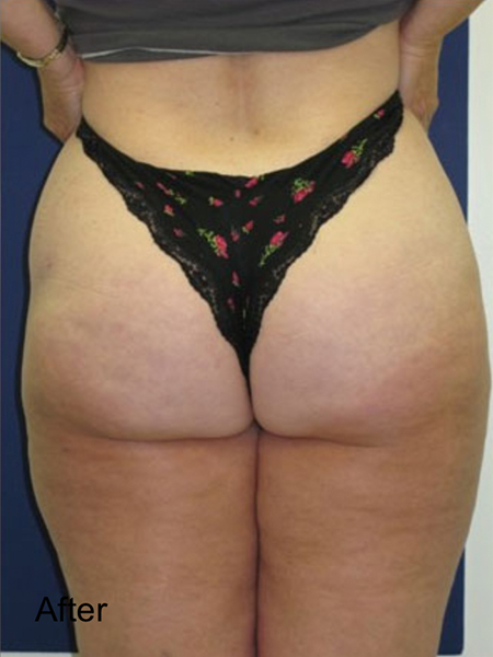 After Hips Lipo