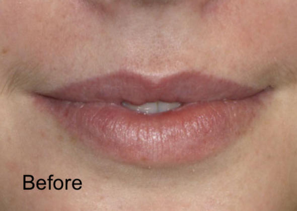 Before Nonsurgical Lips Enhancement