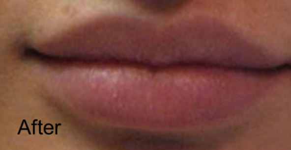 After Nonsurgical Lips Enhancement