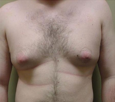 Before Male Breast Lipo