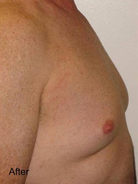 After Male Breast Lipo